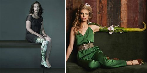 'Alternative Limb Project' – Surreal Prostheses That Will Change Your Life