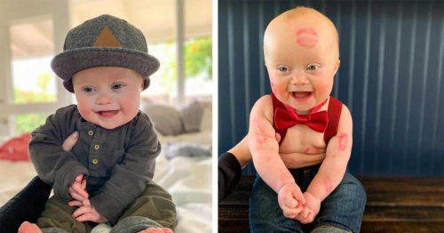 Adorable Toddler with Down Syndrome Becomes Instagram Star and Model for Top Fashion Brands