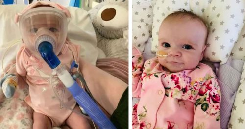 A 7 Month-Old Baby Who Survived COVID-19 While Fighting Heart Defect and Collapsing Lungs